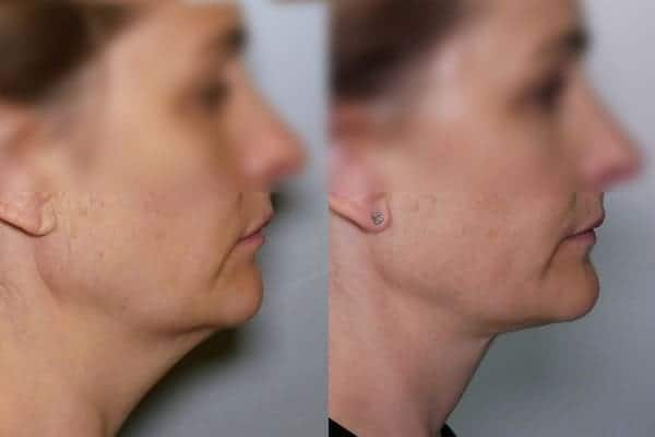 lipoaspiration double menton avant apres liposuccion menton avant apres docteur frederic picard chirurgien esthetique paris levallois perret chirurgien specialiste liposuccion double menton 1