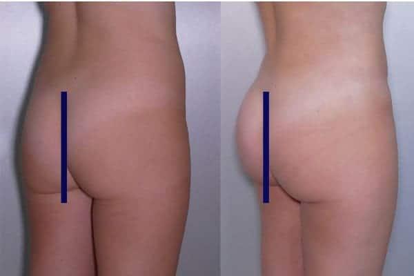 lipofilling de fesses avant apres lipofilling fessiers docteur frederic picard chirurgien esthetique paris levallois specialite fesses 7