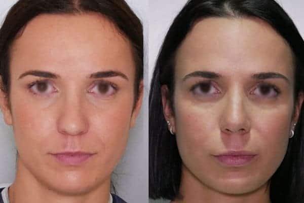 rhinoplastie avant apres docteur frederic picard chirurgien esthetique paris levallois specialiste rhinoplastie paris 16