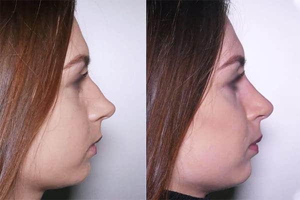 rhinoplastie avant apres docteur frederic picard chirurgien esthetique paris levallois specialiste rhinoplastie paris 17